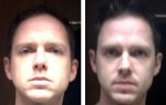 60 days of facial muscle exercises